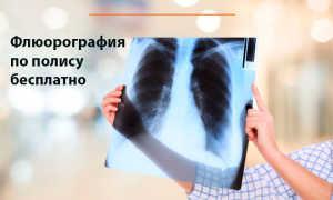 Флюорография бесплатно по полису ОМС
