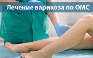 Лечение варикоза бесплатно по полису ОМС